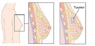 Onkogenees2