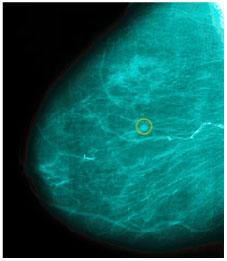 Röntgenpilt rinnast ehk mammogramm