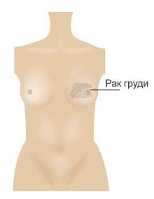 Rinna taastamine 1 RUS