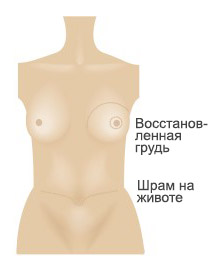 Rinna taastamine3 RUS